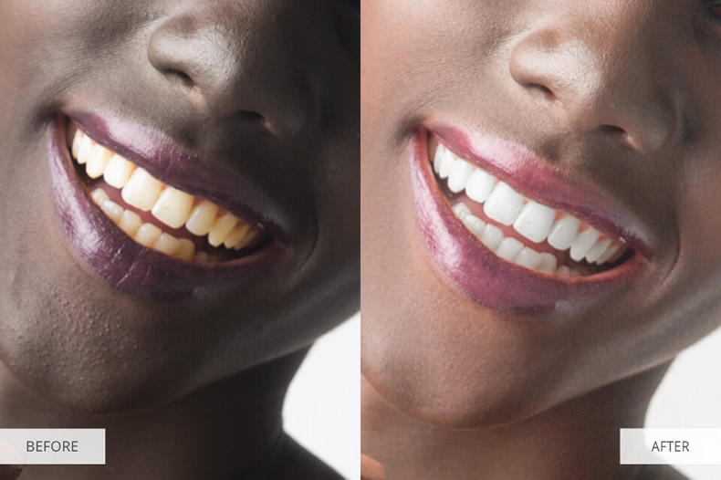 portrait-photo-retouching-teeth-whitening-before-after